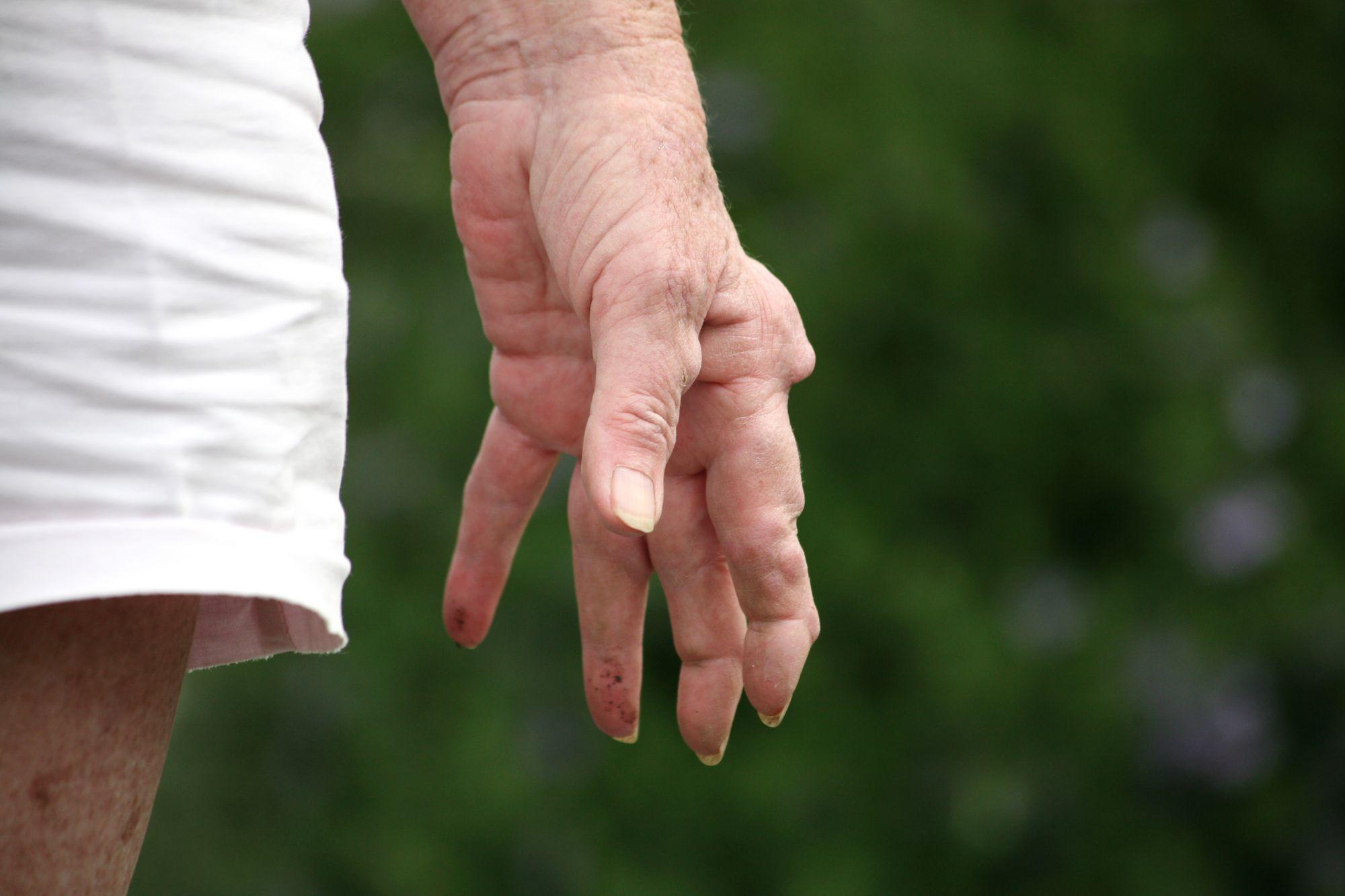 Reumatické ochorenia ruky
