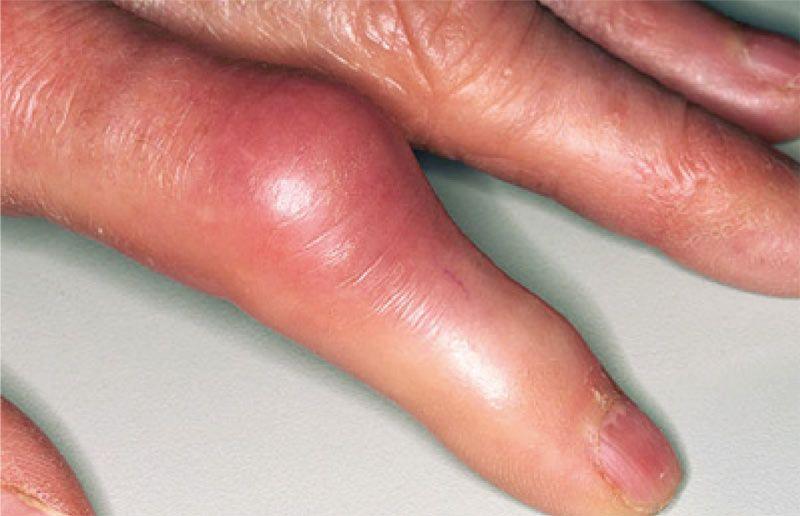 ochorenia kĺbov naruke